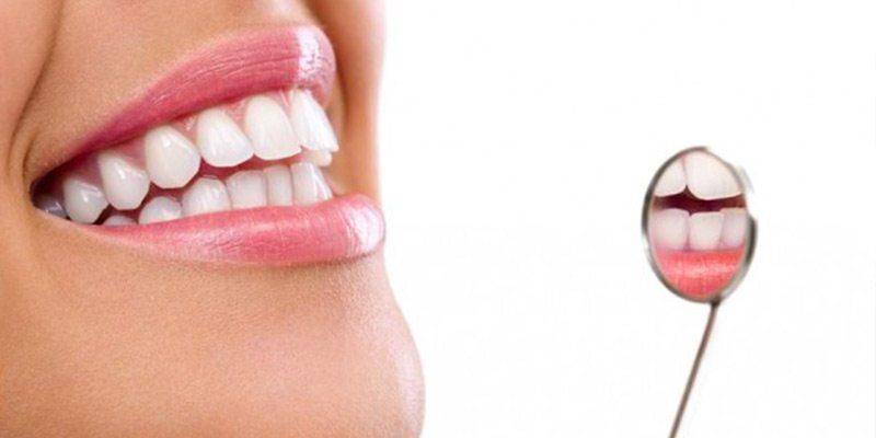 Clareamento dos dentes: recuperando a beleza de seu sorriso