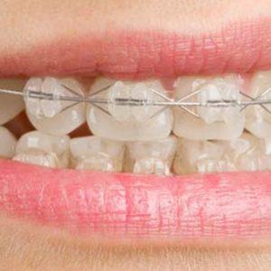 5 Dicas De Limpeza Para Quem Usa Aparelho Dentario Clinica Sim